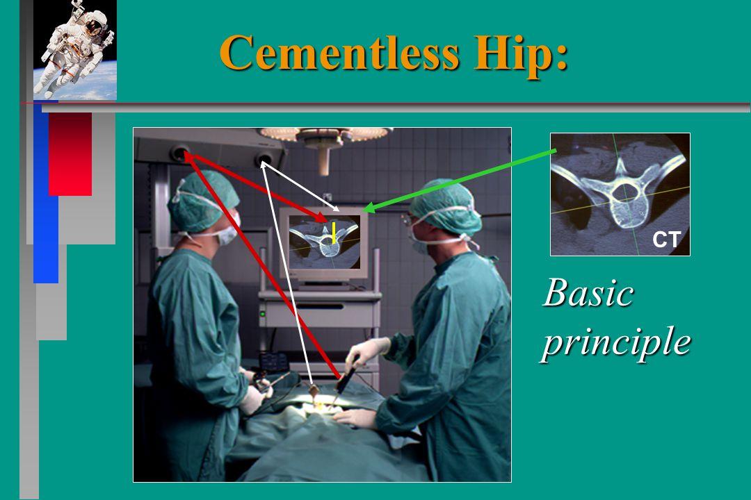 CT Basic principle Cementless Hip: