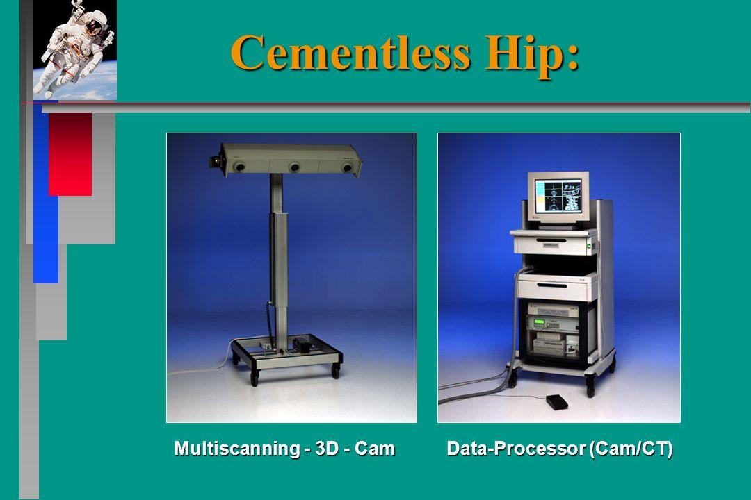 Multiscanning - 3D - Cam Data-Processor (Cam/CT) Cementless Hip: