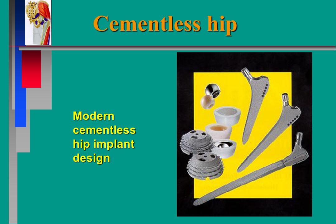 Modern cementless hip implant design