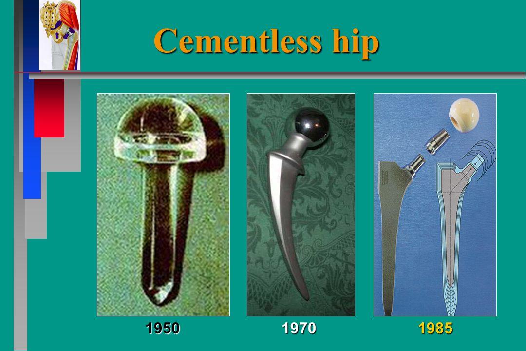 Cementless hip 195019701985
