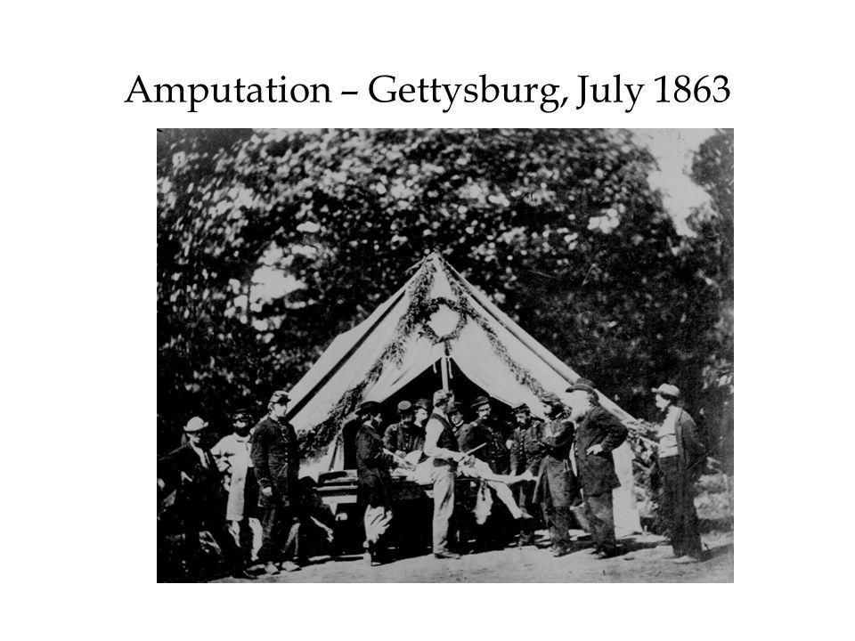 Amputation – Gettysburg, July 1863