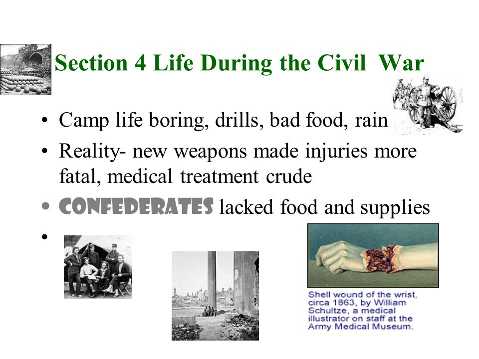 Camp life boring, drills, bad food, rain Reality- new weapons made injuries more fatal, medical treatment crude Confederates lacked food and supplies