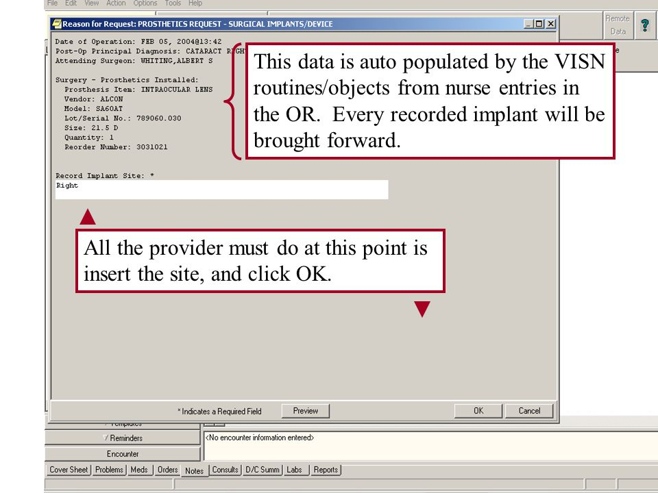 This data is auto populated by the VISN routines/objects from nurse entries in the OR.