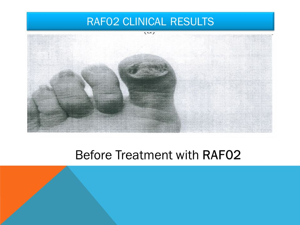 RAF02 CLINICAL RESULTS Before Treatment with RAF02