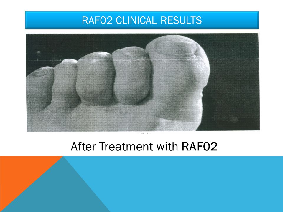 RAF02 CLINICAL RESULTS After Treatment with RAF02