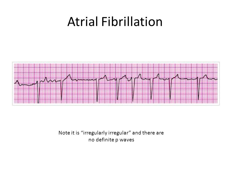 """Atrial Fibrillation Note it is """"irregularly irregular"""" and there are no definite p waves"""