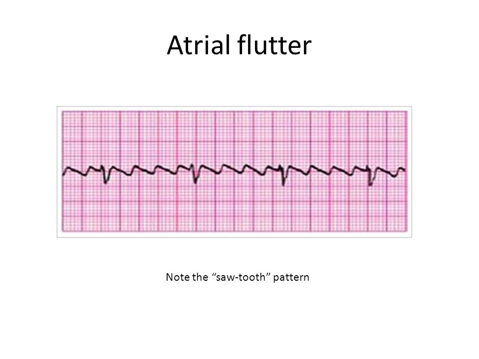 """Atrial flutter Note the """"saw-tooth"""" pattern"""