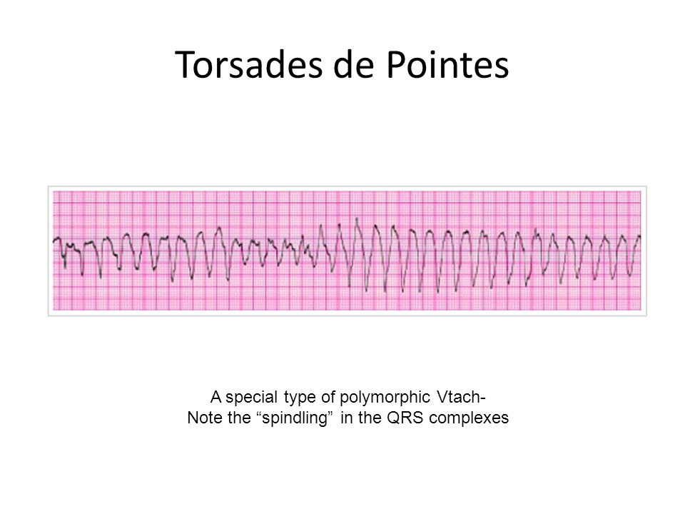 """Torsades de Pointes A special type of polymorphic Vtach- Note the """"spindling"""" in the QRS complexes"""