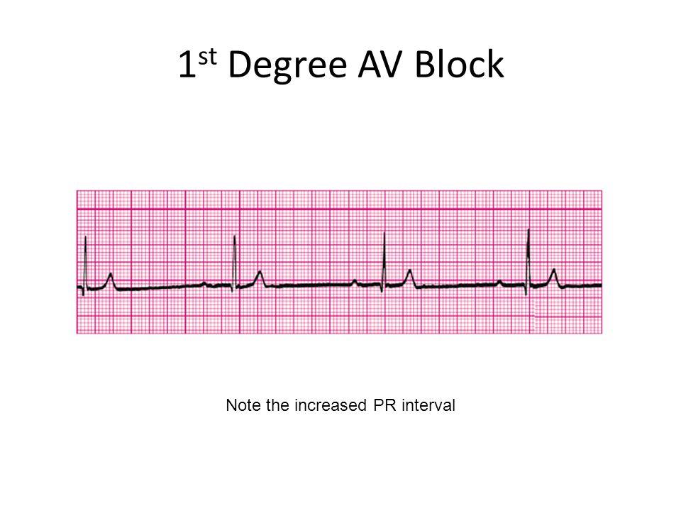 1 st Degree AV Block Note the increased PR interval