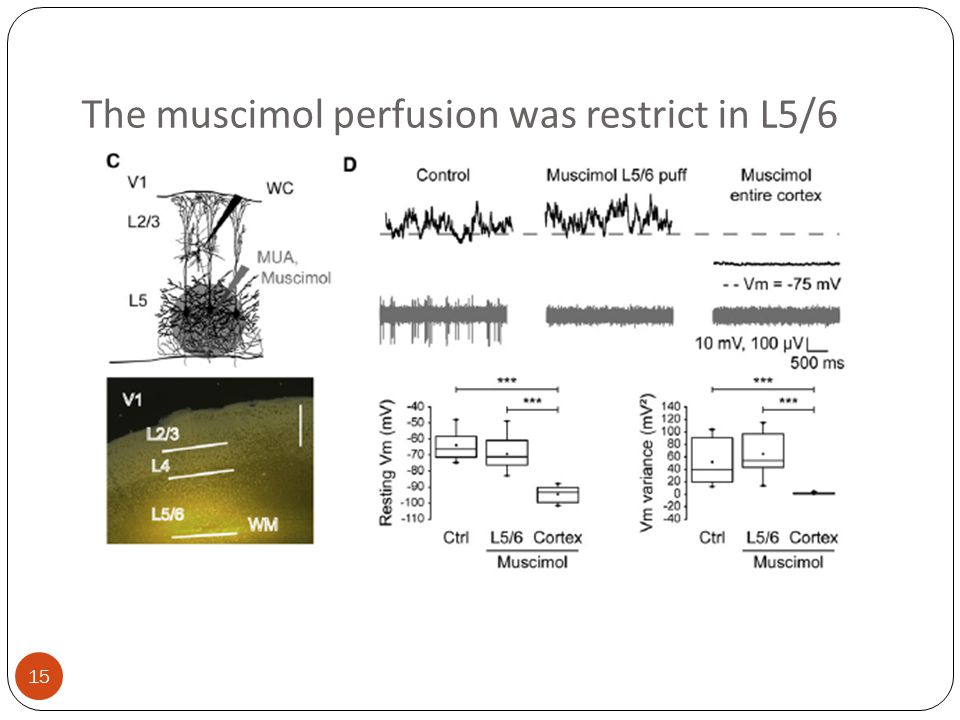 15 The muscimol perfusion was restrict in L5/6