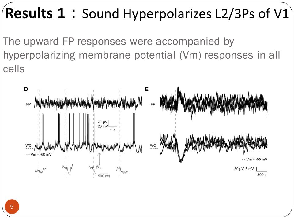 The upward FP responses were accompanied by hyperpolarizing membrane potential (Vm) responses in all cells Results 1 : Sound Hyperpolarizes L2/3Ps of