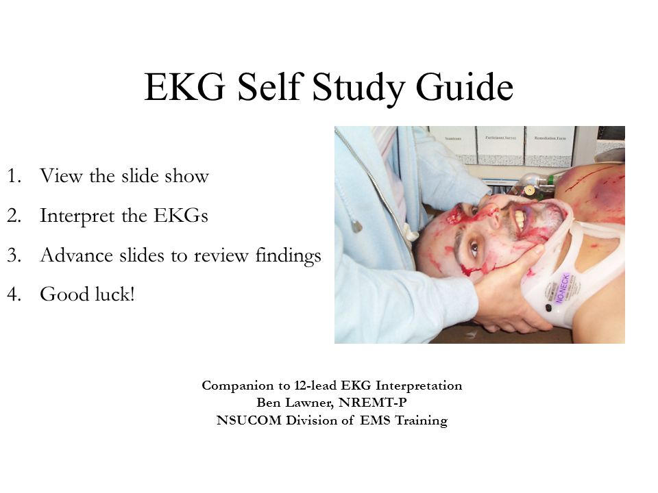 EKG Self Study Guide 1.View the slide show 2.Interpret the EKGs 3.Advance slides to review findings 4.Good luck! Companion to 12-lead EKG Interpretati