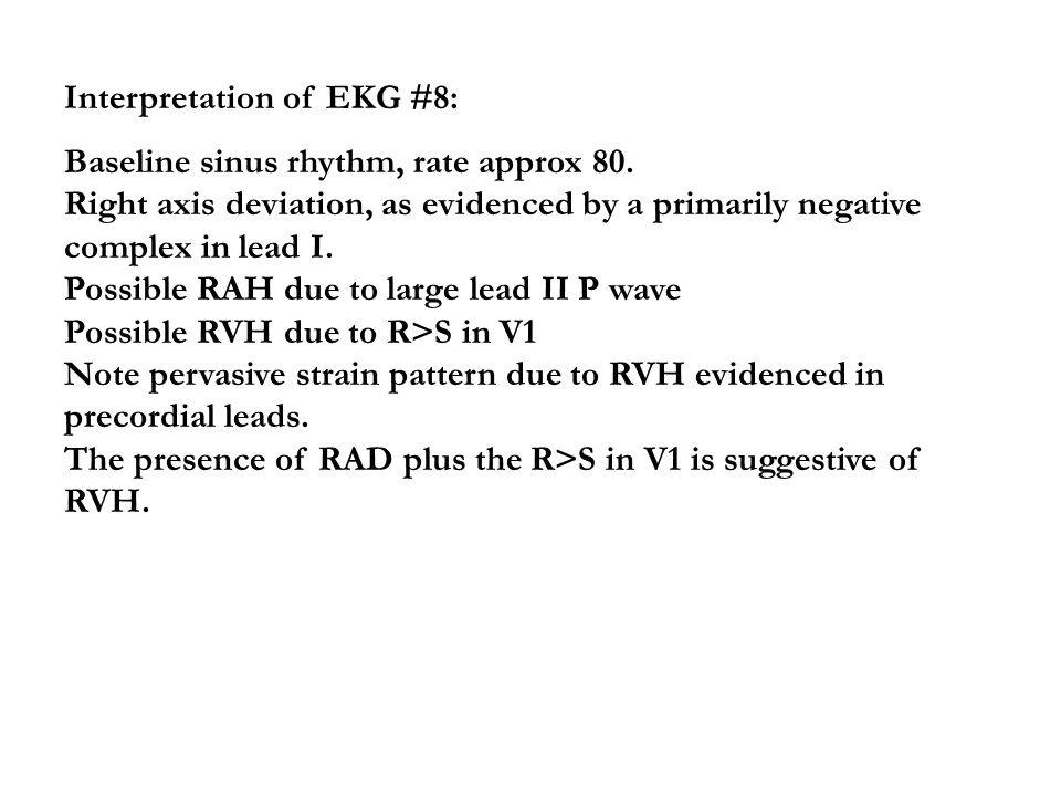 Interpretation of EKG #8: Baseline sinus rhythm, rate approx 80. Right axis deviation, as evidenced by a primarily negative complex in lead I. Possibl
