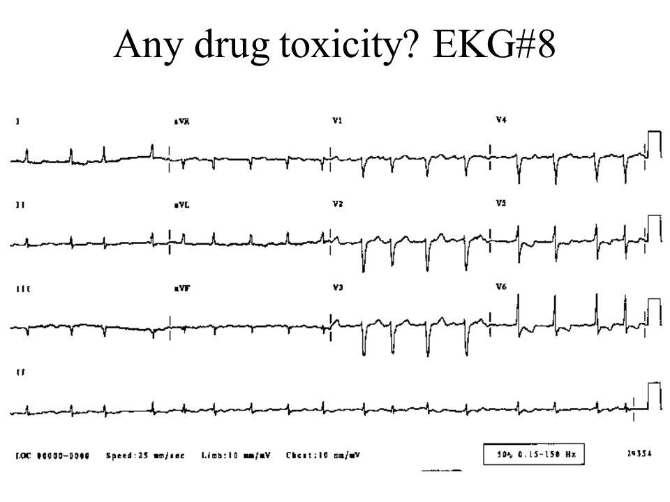 Any drug toxicity? EKG#8