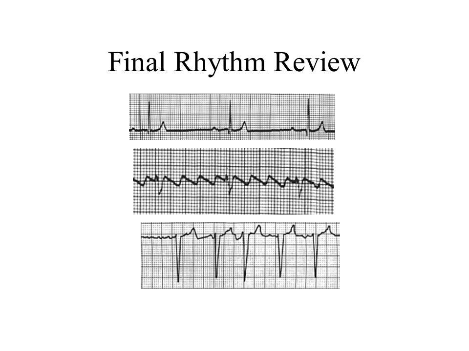 Final Rhythm Review