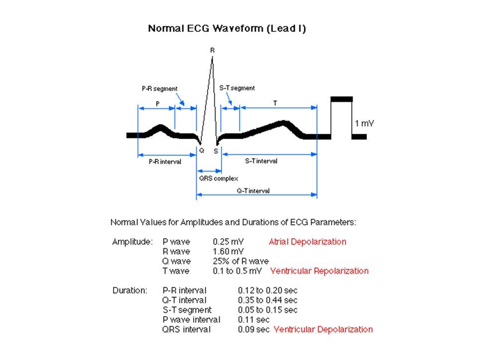EKG #6
