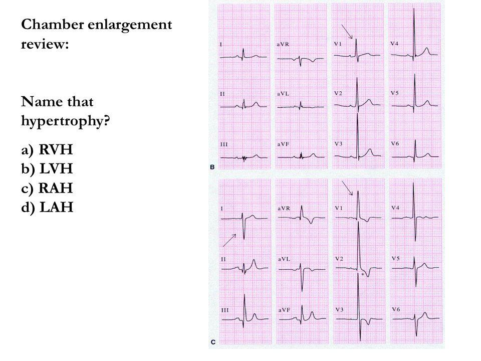 Chamber enlargement review: Name that hypertrophy? a) RVH b) LVH c) RAH d) LAH