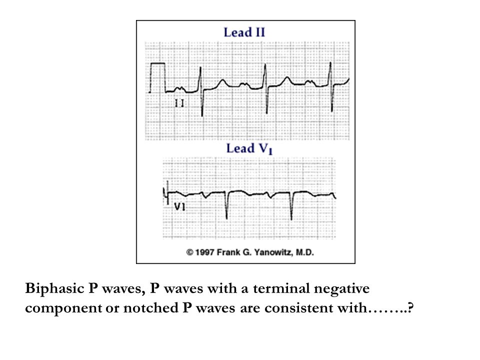 Biphasic P waves, P waves with a terminal negative component or notched P waves are consistent with……..?