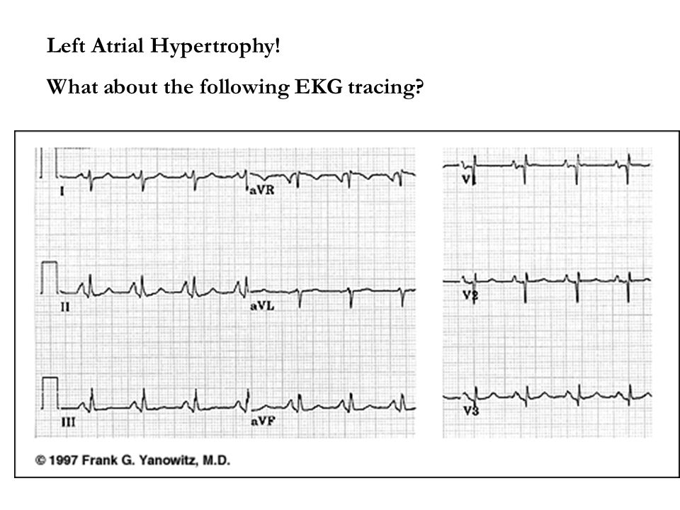 Left Atrial Hypertrophy! What about the following EKG tracing?