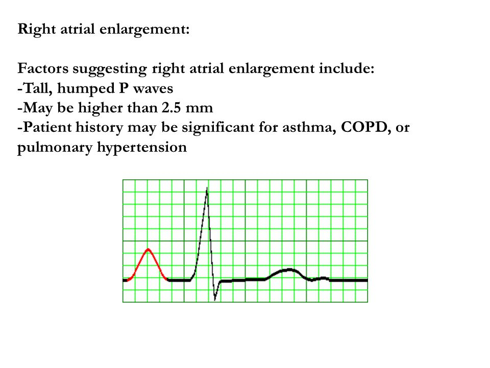 Right atrial enlargement: Factors suggesting right atrial enlargement include: -Tall, humped P waves -May be higher than 2.5 mm -Patient history may b