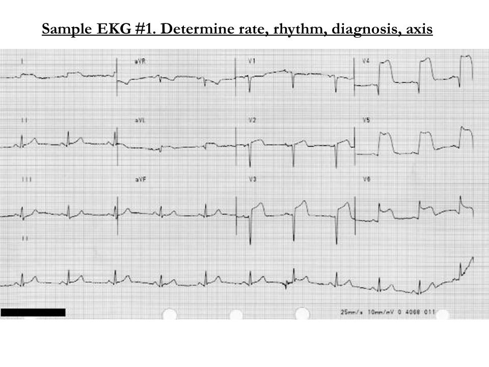 Interpretation EKG#1 Rate: approx 75/min Rhythm: Baseline sinus rhythm, P:QRS is 1:1 Axis: Physiologic Injury: ST elevation is present in the anterior, septal, and literal leads.