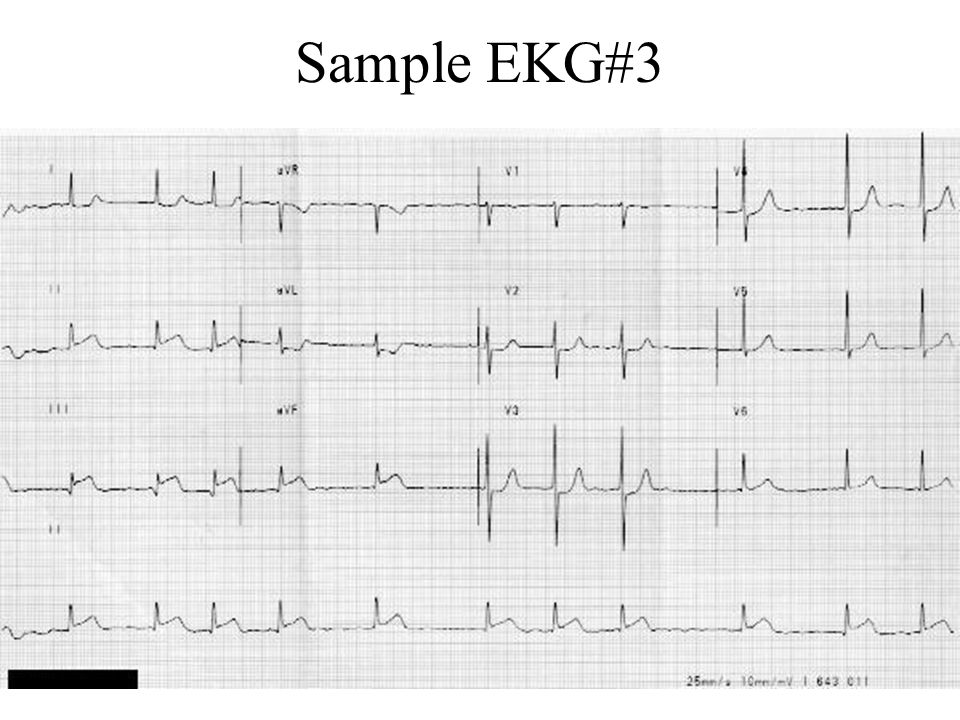 A zebra says, Good-bye What syndrome is typical of the following EKG features.