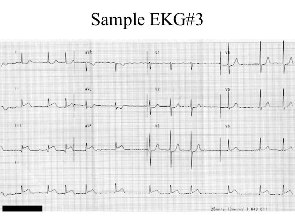 Interpretation EKG#3 The EKG reveals an irregularly irregular rhythm suggestive of atrial fibrillation.