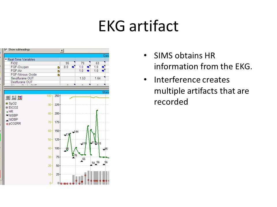 EKG artifact SIMS obtains HR information from the EKG.