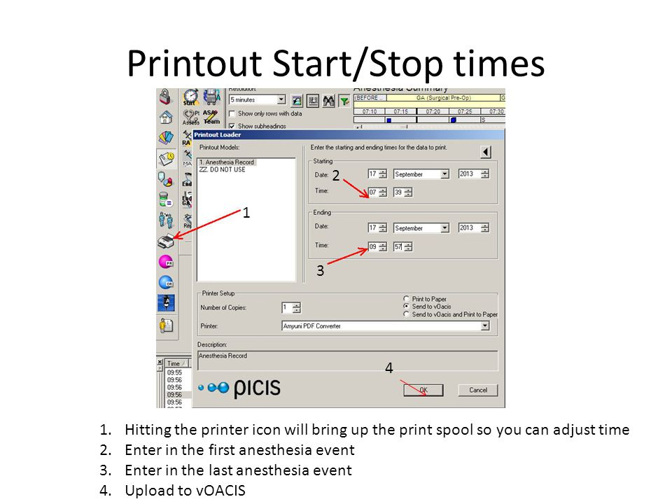 Printout Start/Stop times 1 3 2 1.Hitting the printer icon will bring up the print spool so you can adjust time 2.Enter in the first anesthesia event 3.Enter in the last anesthesia event 4.Upload to vOACIS 4