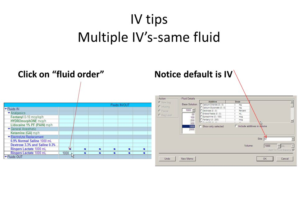 IV tips Multiple IV's-same fluid Click on fluid order Notice default is IV