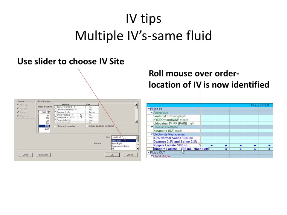 IV tips Multiple IV's-same fluid Use slider to choose IV Site Roll mouse over order- location of IV is now identified