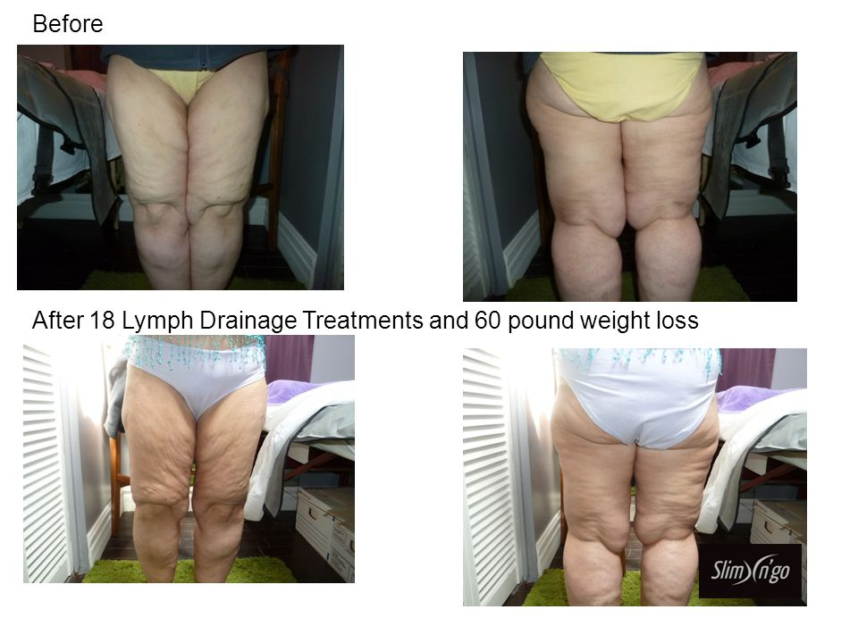 Before After 18 Lymph Drainage Treatments and 60 pound weight loss