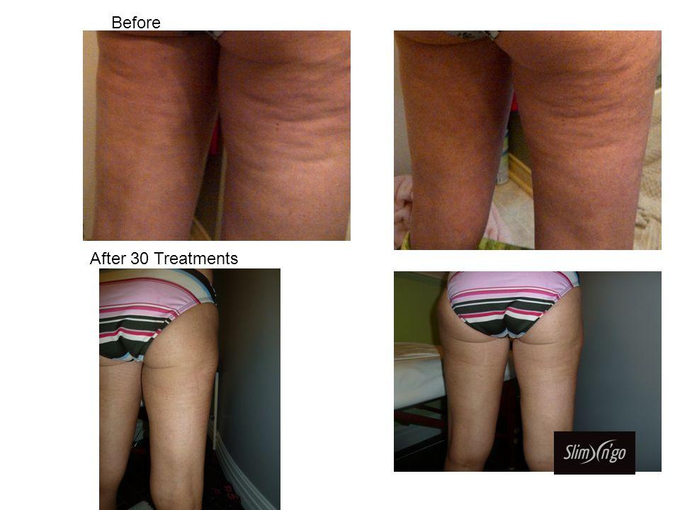 Front – After 1 Treatment Front – After 3 Treatment Progress Pictures Cellulite Treatments