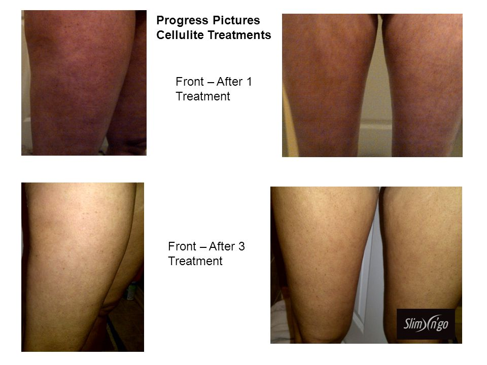 Front After 7 Cellulite Treatments