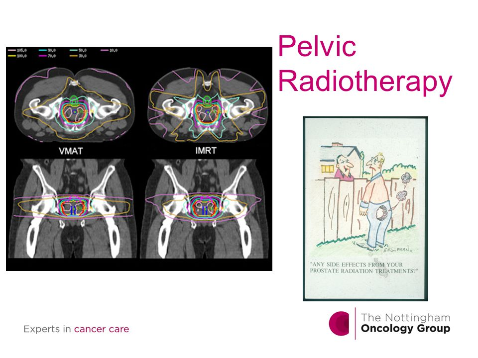Pelvic Radiotherapy
