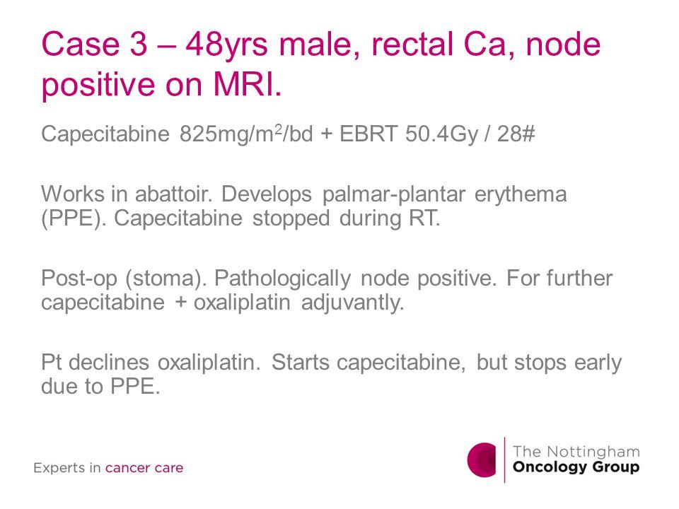 Case 3 – 48yrs male, rectal Ca, node positive on MRI. Capecitabine 825mg/m 2 /bd + EBRT 50.4Gy / 28# Works in abattoir. Develops palmar-plantar erythe