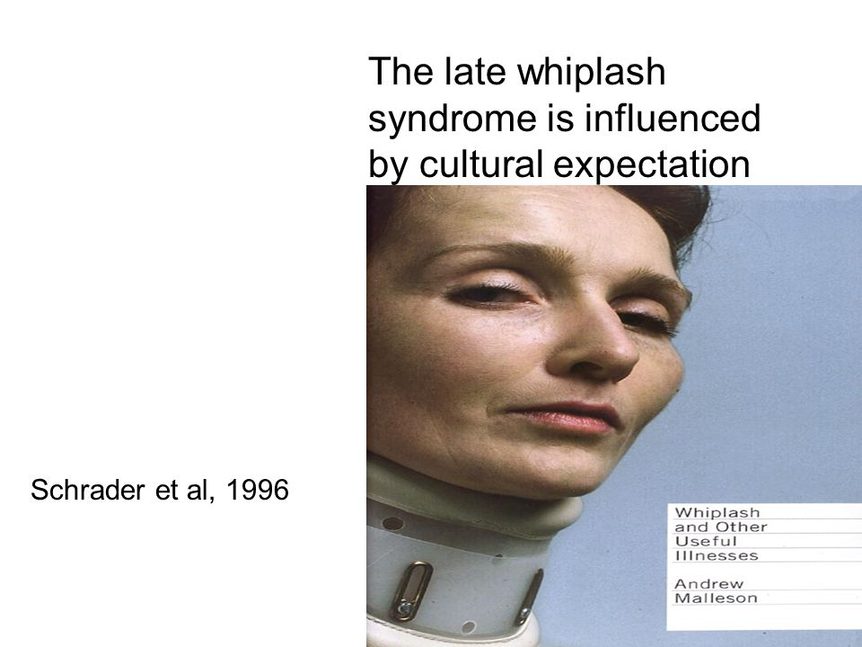 The late whiplash syndrome is influenced by cultural expectation Schrader et al, 1996