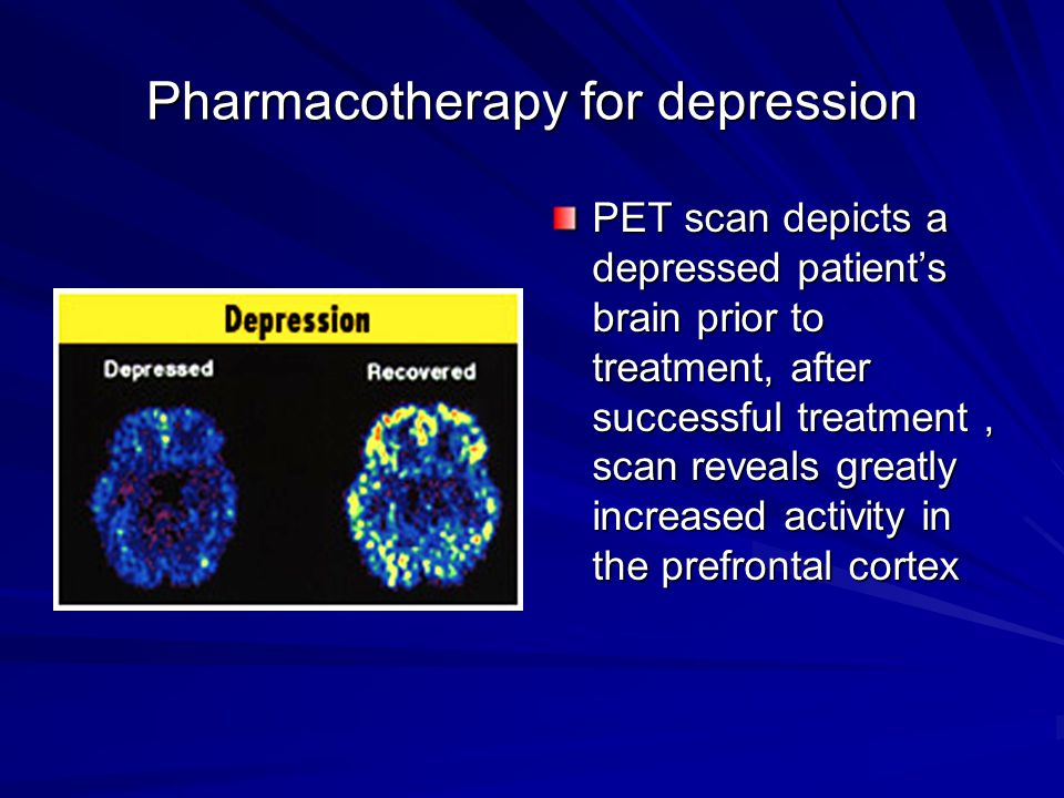 Pharmacotherapy for depression PET scan depicts a depressed patient's brain prior to treatment, after successful treatment, scan reveals greatly incre