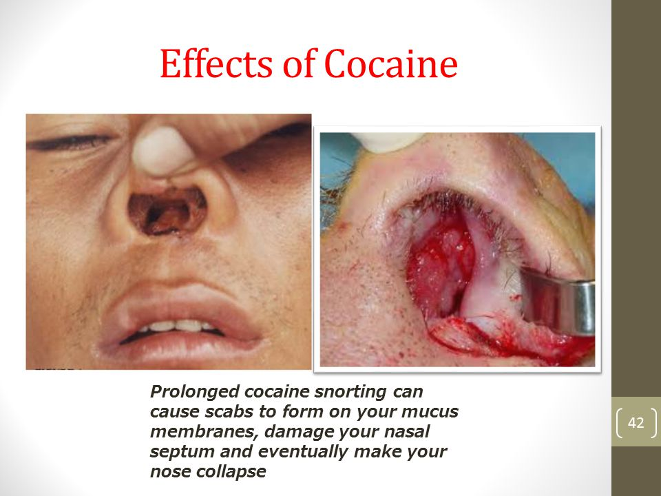 Effects of Cocaine 42 Prolonged cocaine snorting can cause scabs to form on your mucus membranes, damage your nasal septum and eventually make your nose collapse