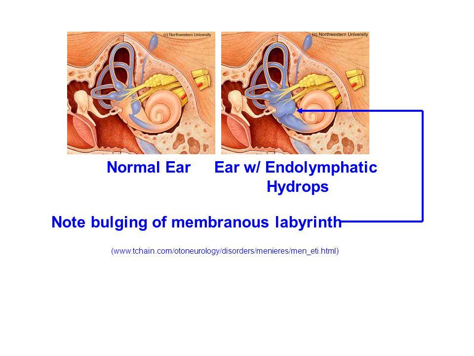 Normal Ear Ear w/ Endolymphatic Hydrops Note bulging of membranous labyrinth (www.tchain.com/otoneurology/disorders/menieres/men_eti.html)