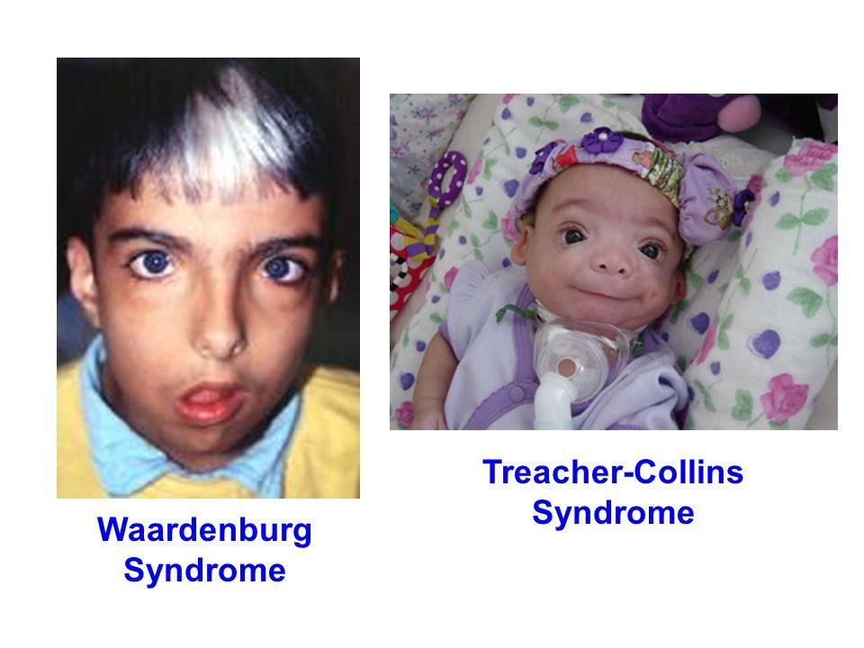 Waardenburg Syndrome Treacher-Collins Syndrome