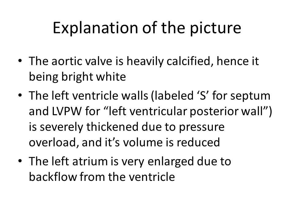 Explanation of the picture The aortic valve is heavily calcified, hence it being bright white The left ventricle walls (labeled 'S' for septum and LVPW for left ventricular posterior wall ) is severely thickened due to pressure overload, and it's volume is reduced The left atrium is very enlarged due to backflow from the ventricle