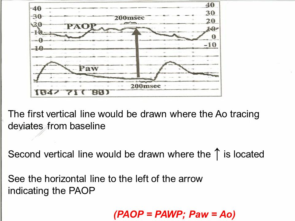31 The first vertical line would be drawn where the Ao tracing deviates from baseline Second vertical line would be drawn where the ↑ is located See t