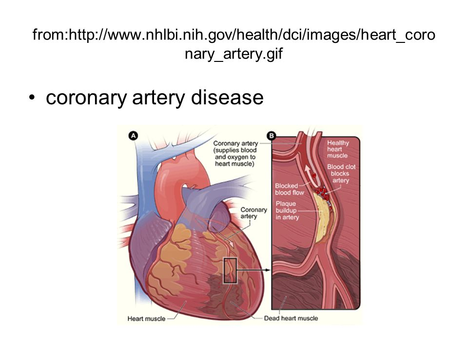 from:http://www.nhlbi.nih.gov/health/dci/images/heart_coro nary_artery.gif coronary artery disease