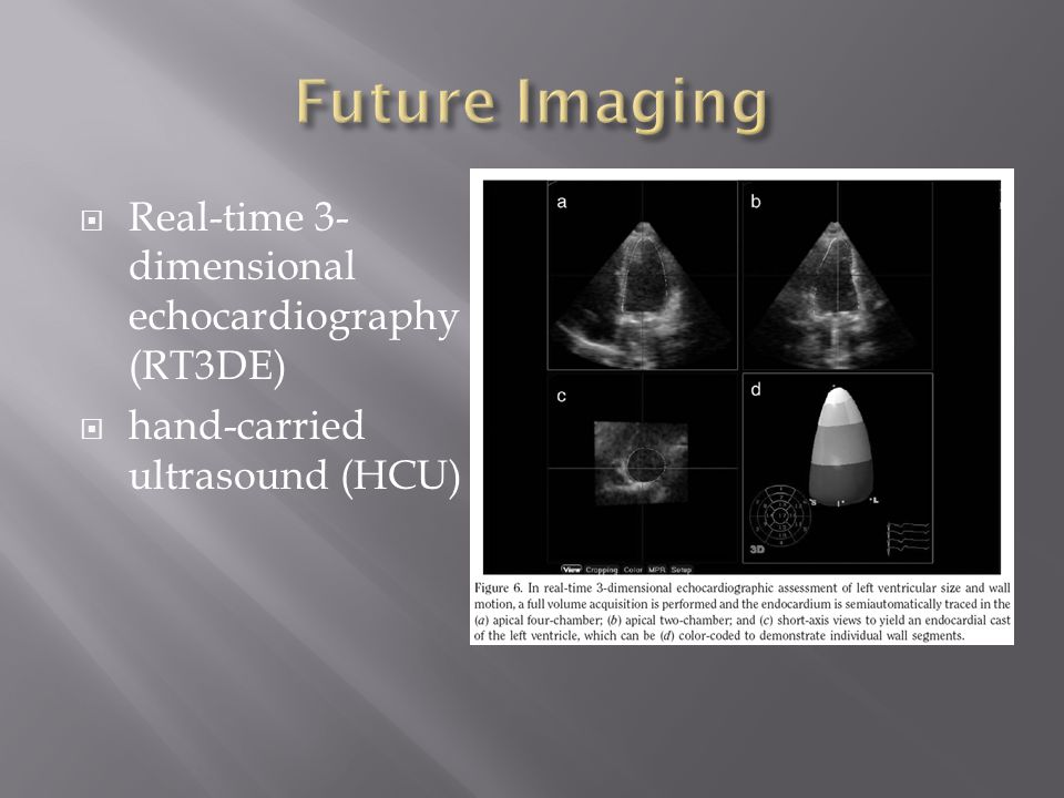 Real-time 3- dimensional echocardiography (RT3DE)  hand-carried ultrasound (HCU)