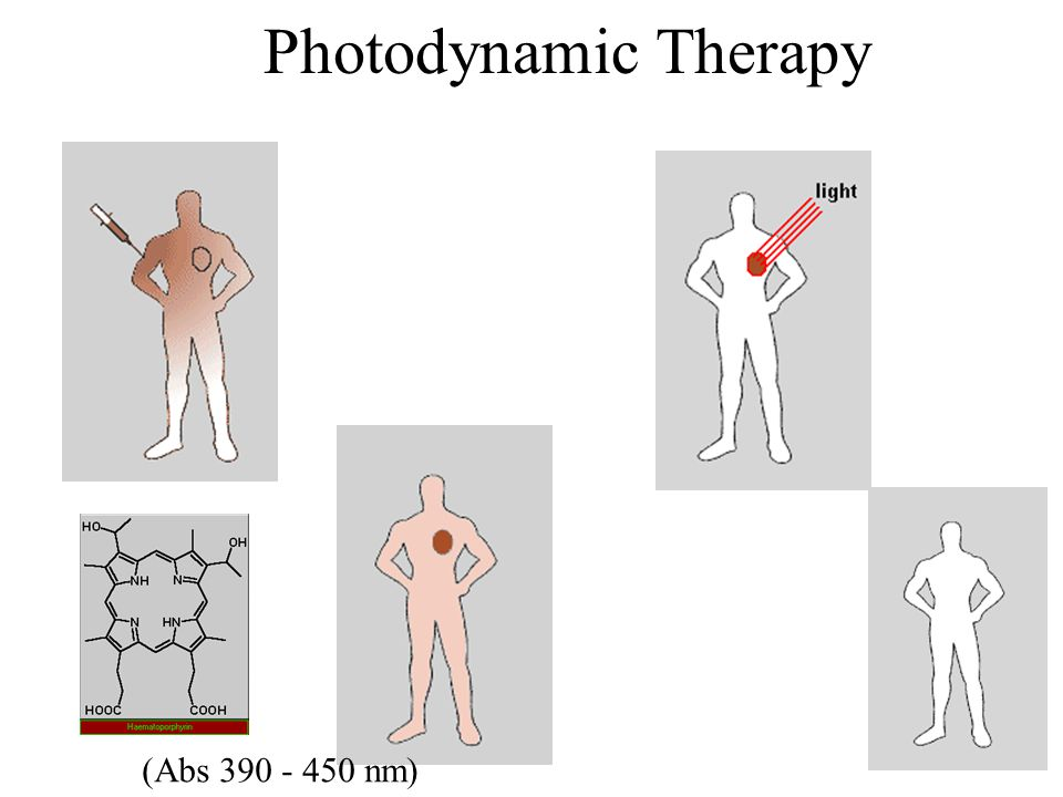 Photodynamic Therapy (Abs 390 - 450 nm)