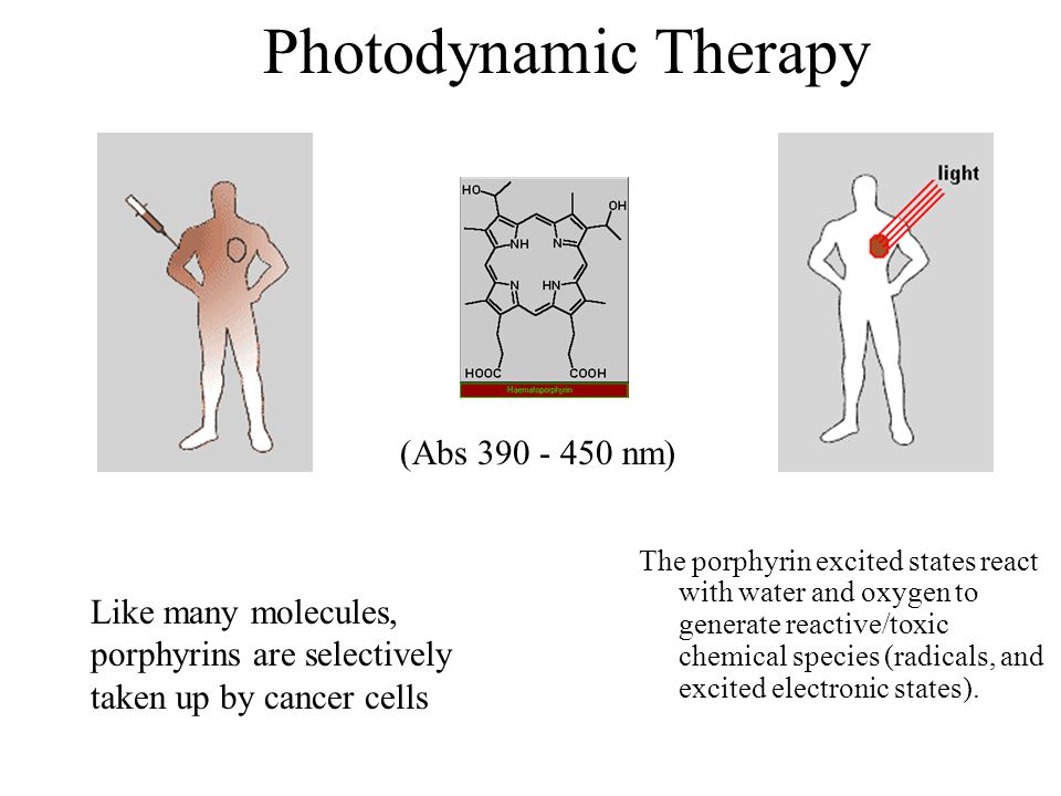 Photodynamic Therapy The porphyrin excited states react with water and oxygen to generate reactive/toxic chemical species (radicals, and excited elect