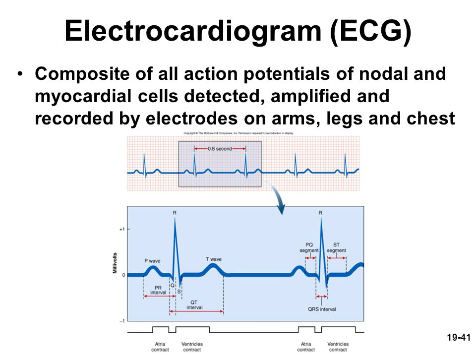 19-41 Electrocardiogram (ECG) Composite of all action potentials of nodal and myocardial cells detected, amplified and recorded by electrodes on arms,