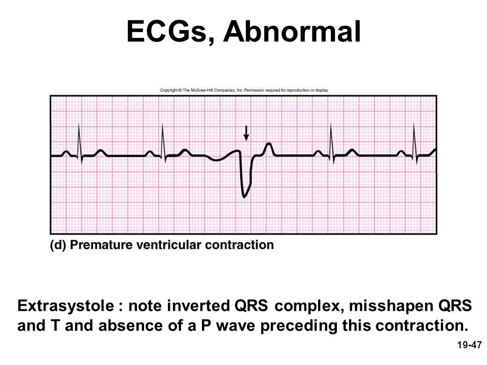 19-47 ECGs, Abnormal Extrasystole : note inverted QRS complex, misshapen QRS and T and absence of a P wave preceding this contraction.