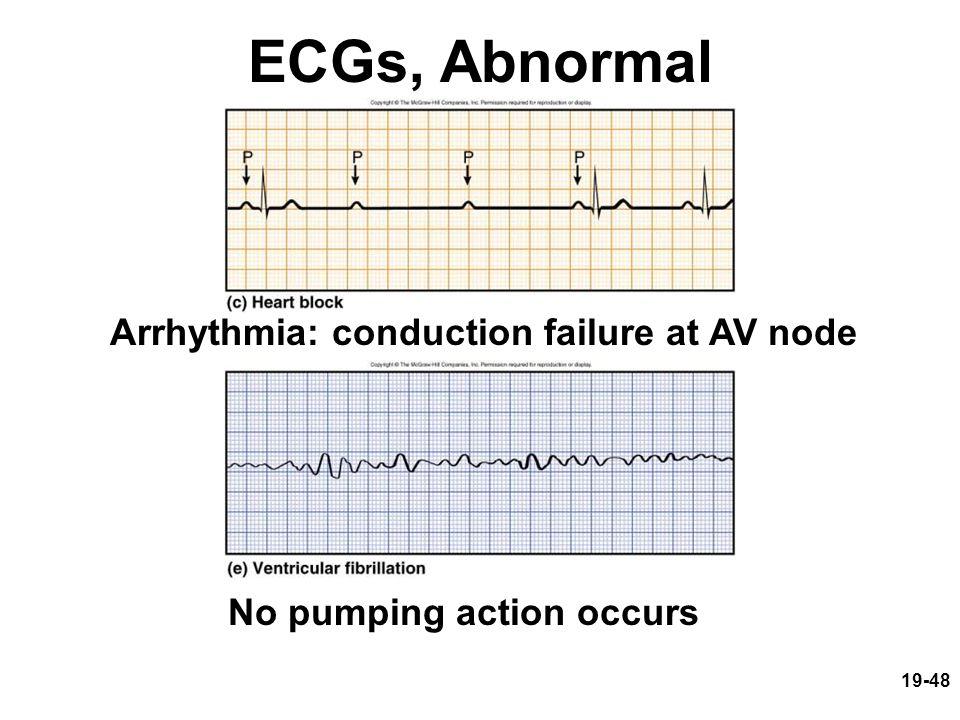 19-48 ECGs, Abnormal Arrhythmia: conduction failure at AV node No pumping action occurs